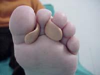 clinodactilia ortesis