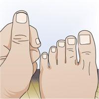 corte uñas1